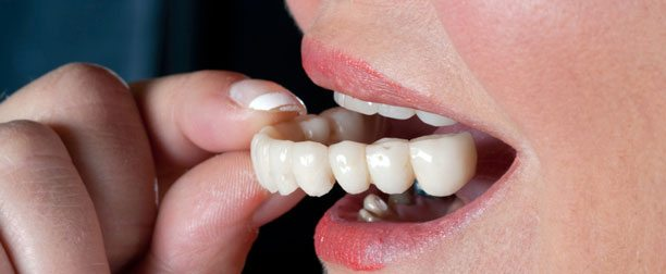 Dental Crowns and Bridges in Los Angeles