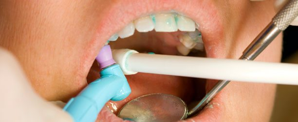 Dental Cleaning and Oral Exam