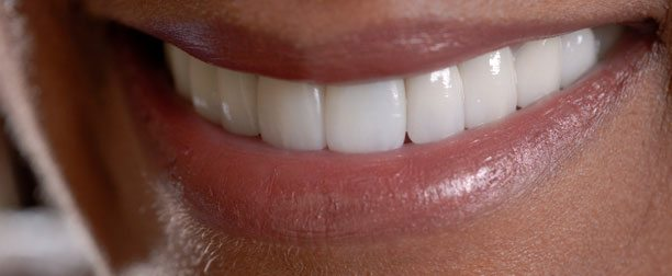 Tooth Fillings and Dental Veneers