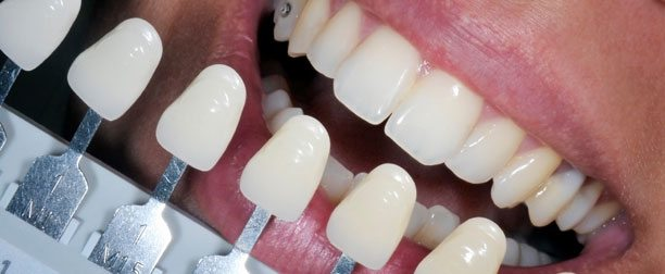 LA Teeth Whitening
