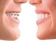 invisalign dentist dtla los angeles