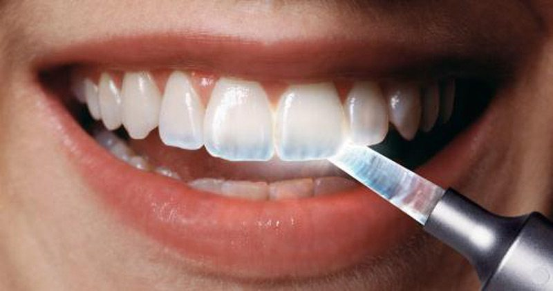 how to fix a small chip in tooth at home