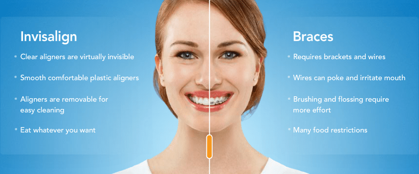 dentist invisalign in los angeles