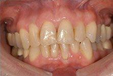 teeth-whitening-before-sm